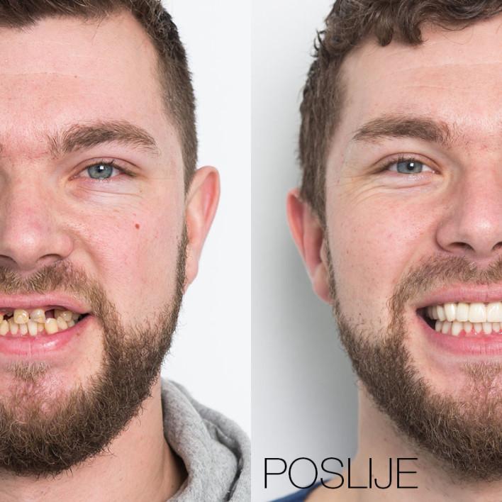 Ivan Potočki - prije / poslije