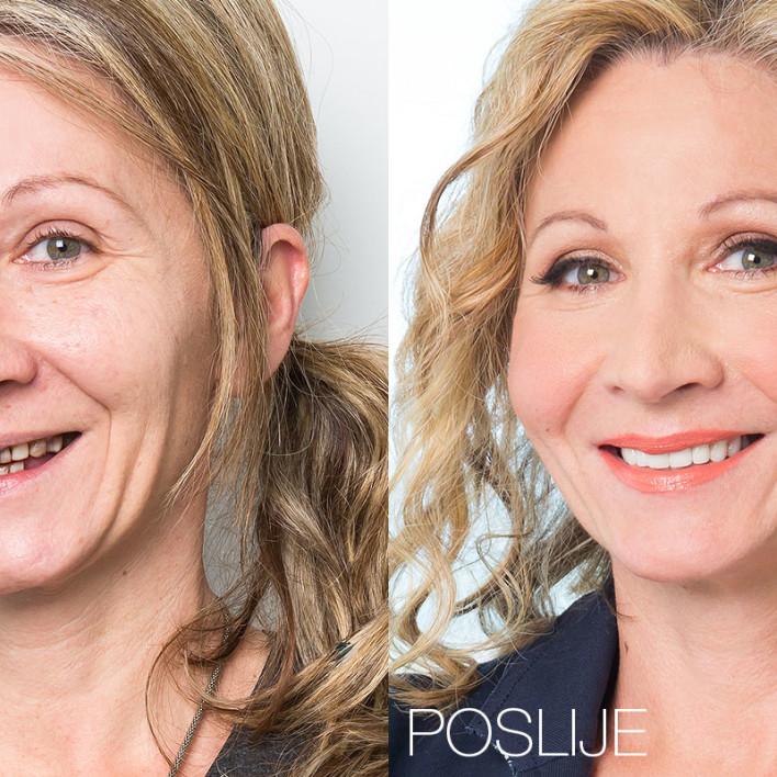 Božica Kovačić - prije i poslije dentalnog makeovera